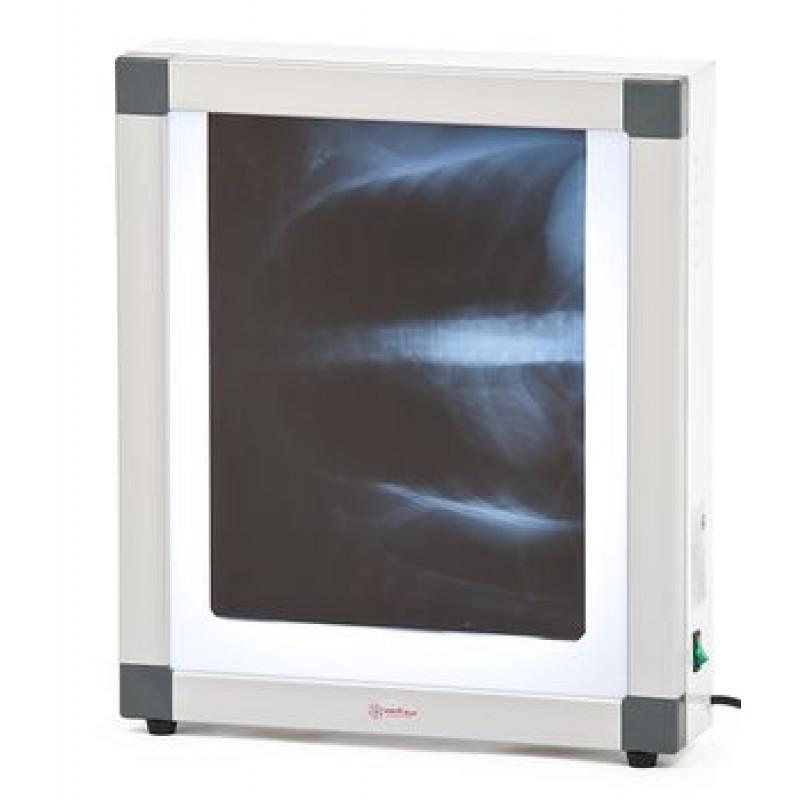 Негатоскоп флуоресцентный 1-кадровый